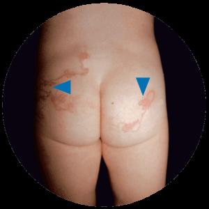 A helmint fertőzés okai - Paraziták endometriosis kezelése